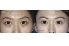 縫合式雙眼皮